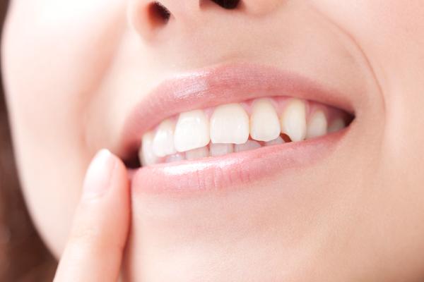 自分では気づかないけど、口臭、歯ぐきの腫れ…本当に大丈夫?